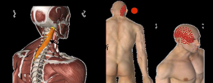 悪くなった筋肉の部位