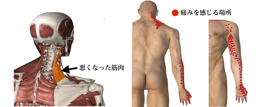 筋肉の痛みのポイント
